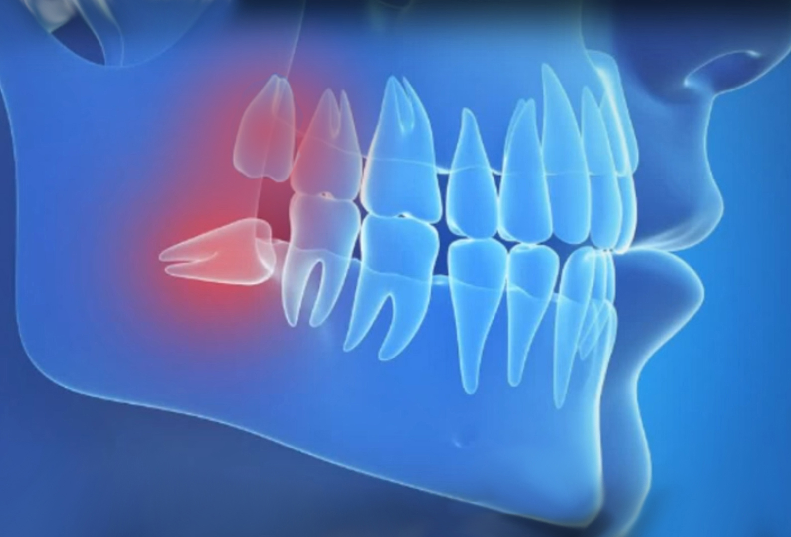 Why does a wisdom tooth behave differently from other teeth?