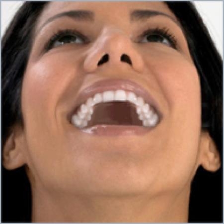 Λευκά Σφραγίσματα – Bonding Δοντιών