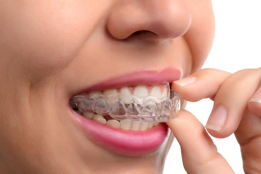 Λεύκανση δοντιών στο σπίτι με μασελάκια