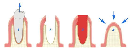 Αισθητική Εξαγωγή Δοντιού-a-PRF