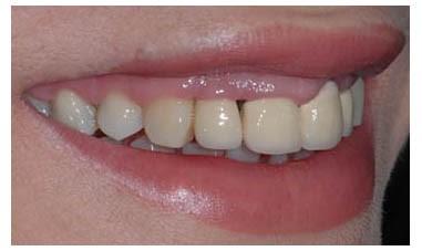 Verbessern Sie das Lächeln, indem Sie die alten, schlecht gefertigten Porzellankronen ersetzen.