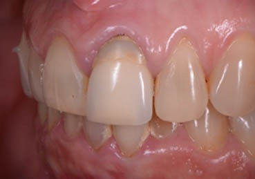 Porcelain crown on a single tooth