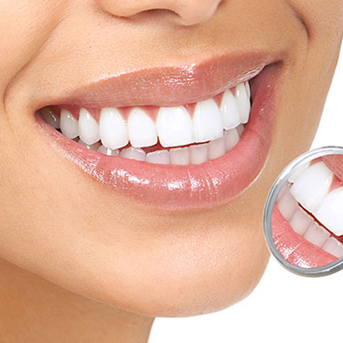 White composite fillings / porcelain inlays