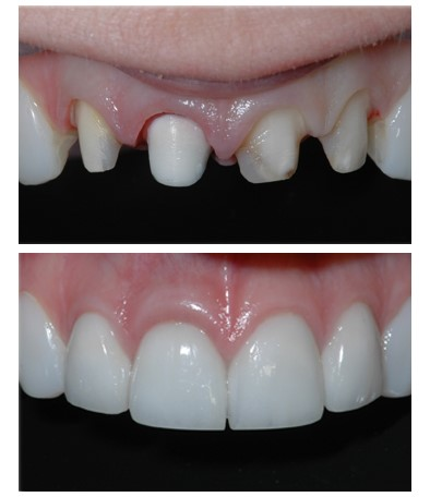 Treating teeth with porcelain crowns using the microscope